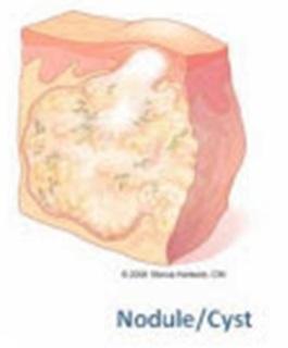 Nodule Cyst